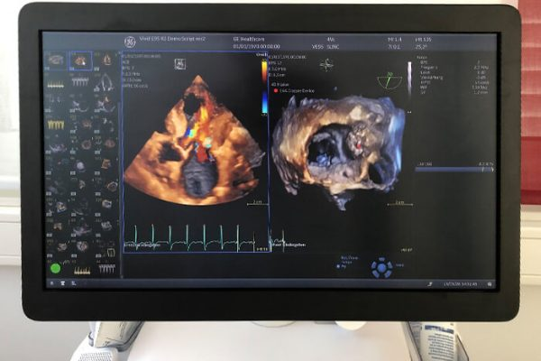 Cardiologie Luxemburg